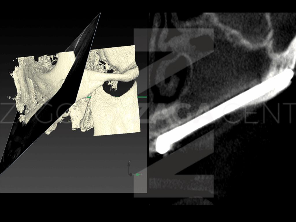 ZAGA Centers - SURGERY 02-2020 015